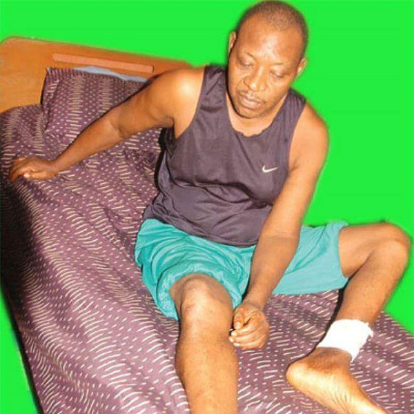 Photo of Ailing Nollywood Actor, Prince James Uche Gets N14million For Medical Bills