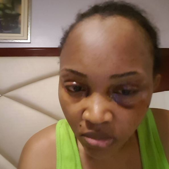 """Mercy Swollen Eyes - """"Mr Gentry, I am ready for you"""" - Mercy Aigbe Rubbishes Estrange Husband On Instagram"""