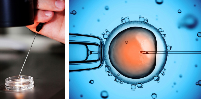 IVF - Woman Shocks Husband, Swaps His Sperm for her Lover's During IVF