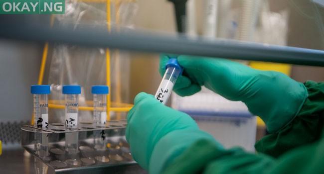 Photo of Nigeria announces new case of coronavirus in Abuja